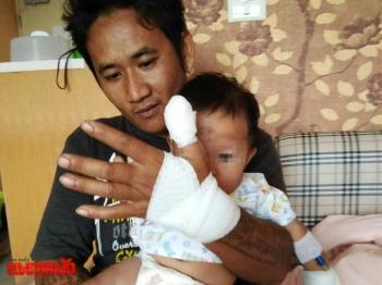 นากทะเลอาละวาดชาวบ้าน กัดเด็ก4เดือนบาดเจ็บเย็บ9เข็ม