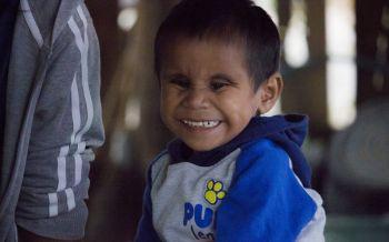 วอนช่วย'น้องบาส'  7ขวบพิการสมอง  ครอบครัวยากจน