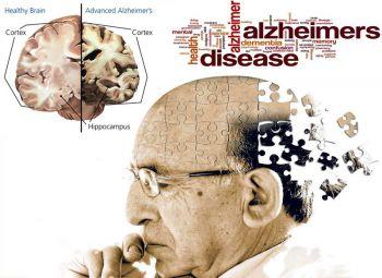 สกู๊ปแนวหน้า : 'อัลไซเมอร์'สมองเสื่อม  รู้เร็ว-เตรียมพร้อม-ลดเสี่ยง