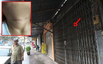 นทท.ชาวฮังการีโวยเดินเที่ยวย่านตึกเก่าเมืองตรัง สายเคเบิ้ลเกี่ยวคอลูกเจ็บ