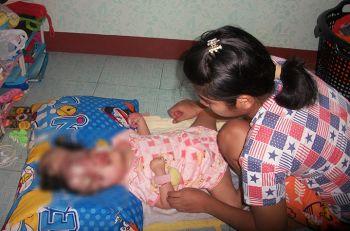 สุดสงสารเด็ก4ขวบป่วยโรคงวงช้าง ครอบครัวยากจน-วอนผู้ใจบุญช่วยเหลือ
