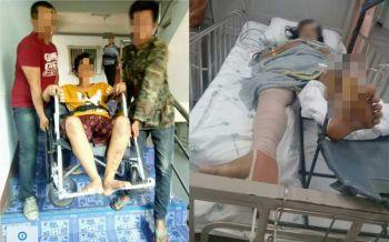 อดีตพริตตี้สาวพิการจากรถชน  บ.ประกันภัยชื่อดังจ่ายเพียง5หมื่น หวังคปภ.ช่วยเหลือด่วน
