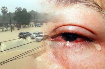 เตือน ปชช.ระวังป่วยโรคตาแดงช่วงฤดูฝน เผยปีนี้พบผู้ป่วยแล้วเกือบ 6 หมื่นราย